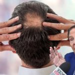 Kenneth Copeland Casts Away Bald Spots in Jesus Name